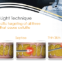 Cellulaze: First scientifically validated laser cellulite treatment approved by FDA