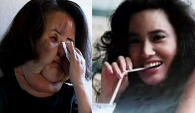 Former Korean model Hang Mioku, a plastic surgery addict, injected cooking oil into her face when doctors refused to give her any more silicone