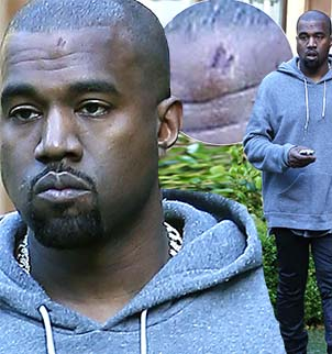 Kanye West hit his head on a caution sign on Friday while on a lunch date with Kim Kardashian