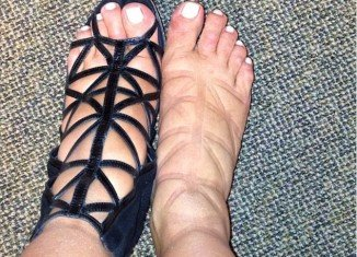 Kim Kardashian complained about her swollen feet when she tweeted a snap of them after wearing caged Givenchy boots all day