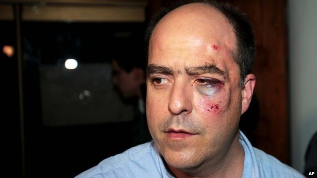 Opposition deputy Julio Borges appeared on a local TV station with facial bruises after Venezuela's parliament brawl