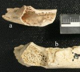 A fossilized Neanderthal rib found in a shallow cave at Krapina, Croatia, shows signs of a bone tumor
