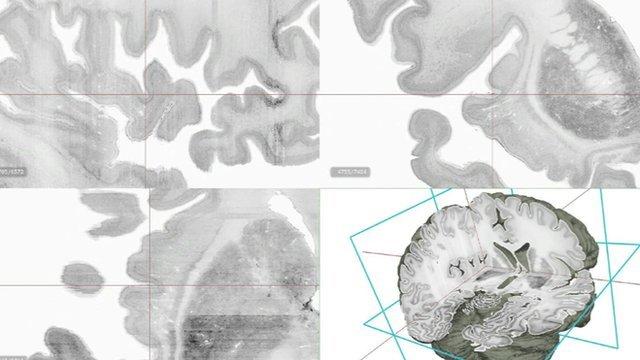 Big Brain is the first high-resolution 3D digital model of the human brain
