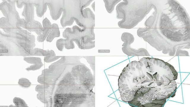 Big Brain is the first high resolution 3D digital model of the human brain photo