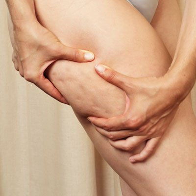Losing cellulite may be difficult because you subscribe to the tall tales attributed to it photo