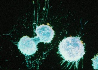 A new way of screening for ovarian cancer is showing potential