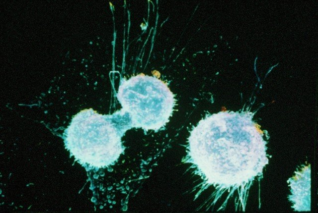 A new way of screening for ovarian cancer is showing potential 640x430 photo