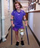 Jane Richard showed off her new prosthetic leg four months after Boston Marathon tragedy