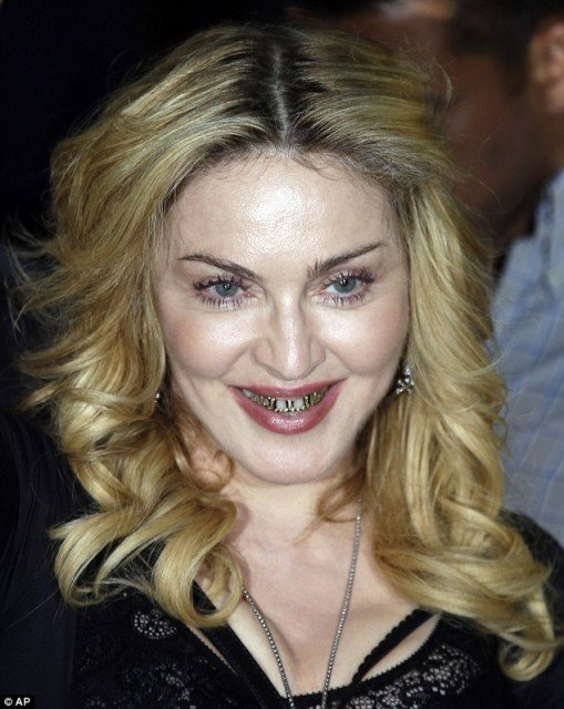 Madonna was keen to give fans and photographers a closer look at her gold grills as she paid a visit to the Hard Candy fitness studio in Rome 509x640 photo
