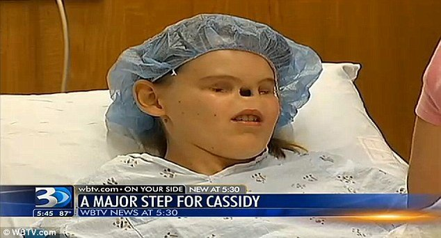 Cassidy Hooper who was born with no eyes or nose is just days away from a surgery that will give her a nose photo