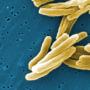 Tuberculosis origins traced back to humans