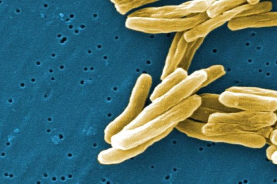 The origins of human tuberculosis have been traced back to hunter-gatherer groups in Africa 70,000 years ago