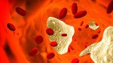 HDL cholesterol also has a nasty side that can increase the risk of heart attacks
