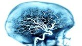 Georgetown University researchers have discovered that a blood test can accurately predict the onset of Alzheimer's disease