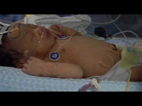 Cooling babies deprived of oxygen at birth improves their chances of growing up without disabilities such as cerebral palsy