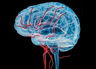 Infusing stem cells into the brain may help boost recovery after a stroke