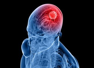 Stem cells could be turned into killing machines to fight brain cancer