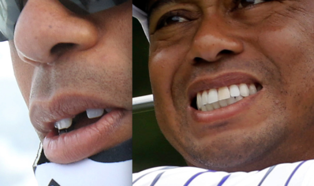 Tiger Woods missing tooth