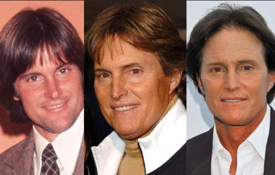 Bruce Jenner nose surgery