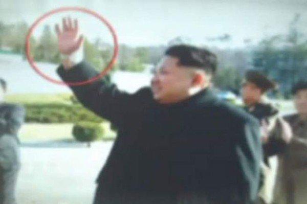 Kim Jong un wrist injury