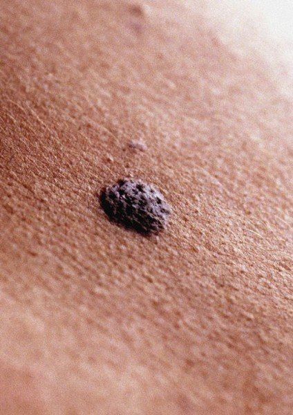 Mole and skin cancer risk